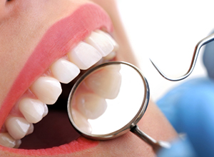 dental care in calicut Kerala